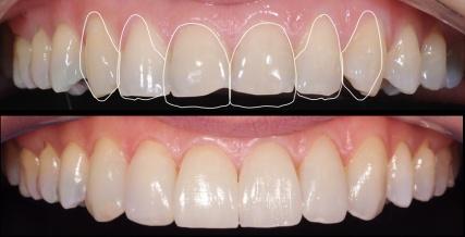 10-design-do-futuro-sorriso-lente-de-contato-dental